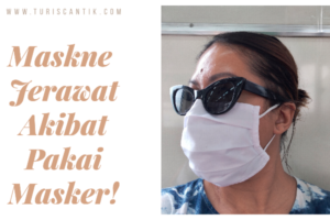 maskne jerawat akibat pakai masker